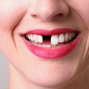 Do Brits really have bad teeth? thumbnail