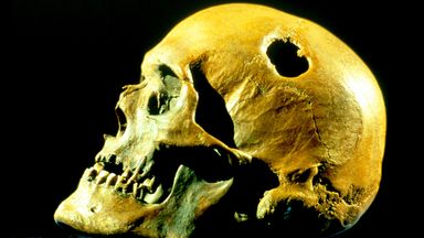 A trepanned skull (Credit: National Museum Denmark/Munoz-Yague/Science Photo Library)