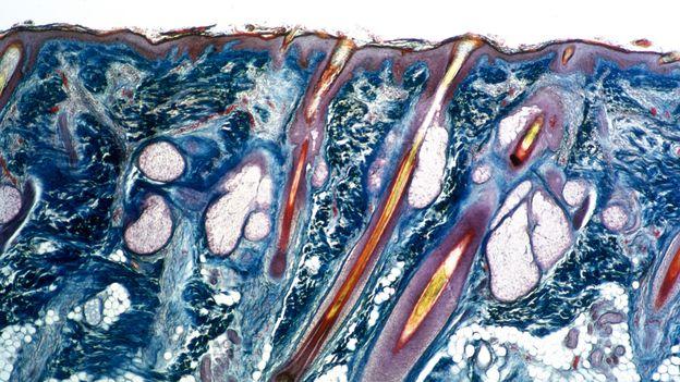 Saç köklerine bağlı yağ bezleriyle insan cildi (Fotoğraf: Sheila Terry / SPL)