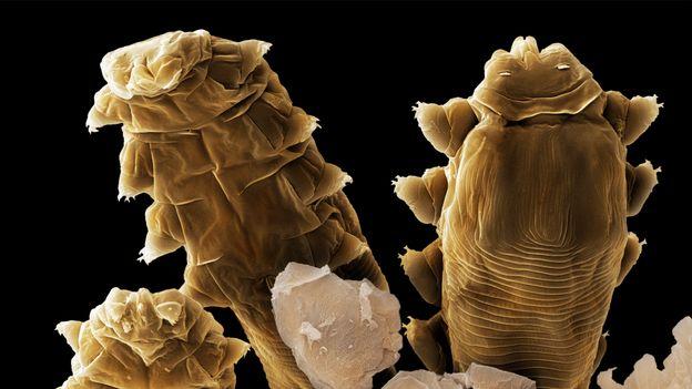 Demodex folliculorum'un başları ve bacakları (Kredi: Power ve Syred / SPL)