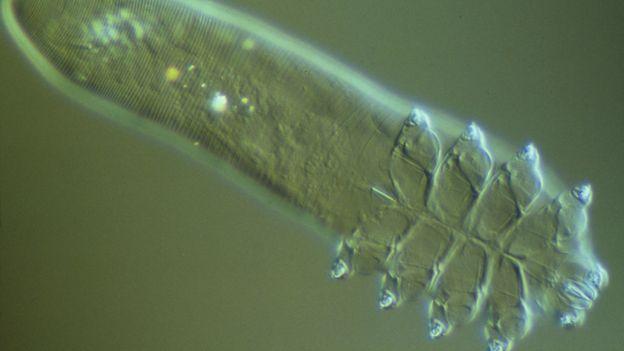 Işık mikroskobu altında bir Demodex folliculorum (Kredi: Power ve Syred / SPL)