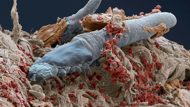 Demodex folliculorum'un taramalı elektron mikrografı (Kredi: Eye of Science / SPL)