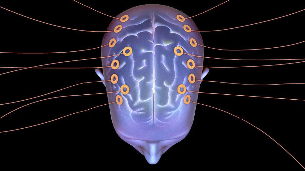 Artist's impression of a man with wires coming out of his brain (Copyright: SPL)