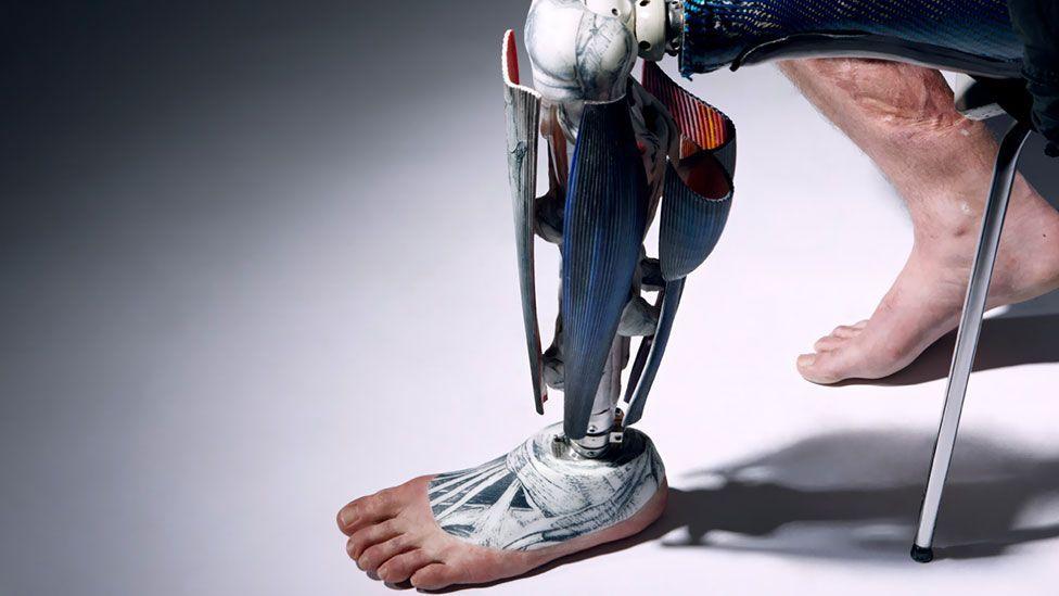 (Omkaar Kotedia/Alternative Limb Project)