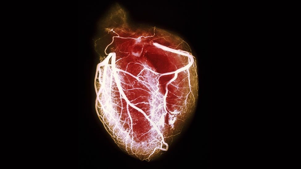 Heart failure due to emotional stress was only full accepted as a diagnosis in the last decade (SPL)