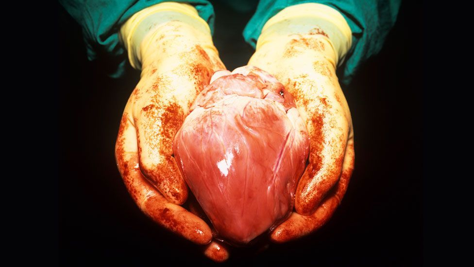 You might accept a human heart transplant (pictured) if it saved your life, but what about a pig's? (SPL)