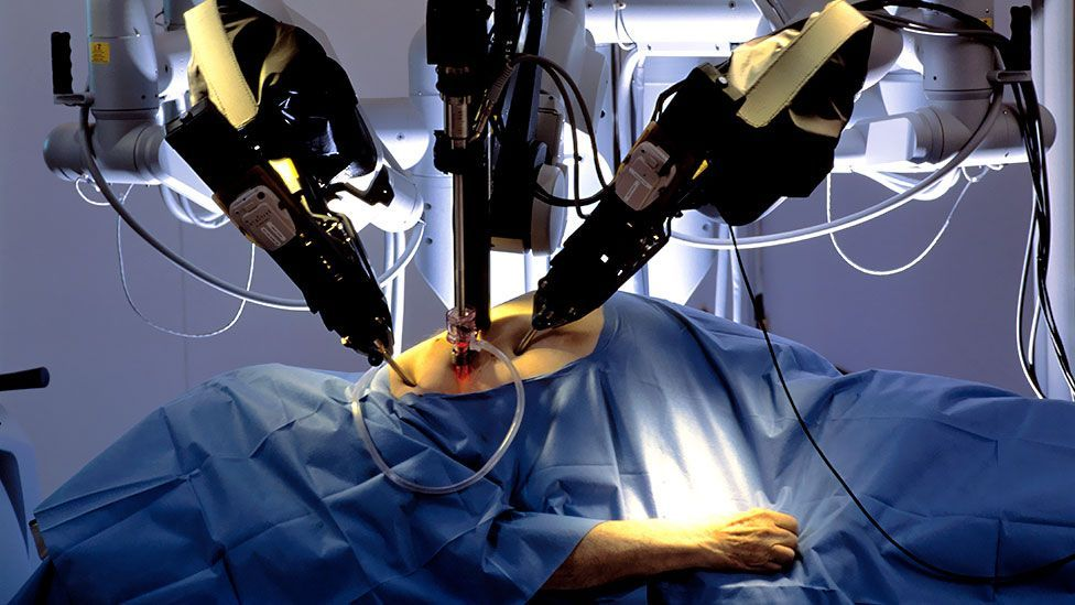The remote-controlled Da Vinci robot surgeon performs surgery (SPL)