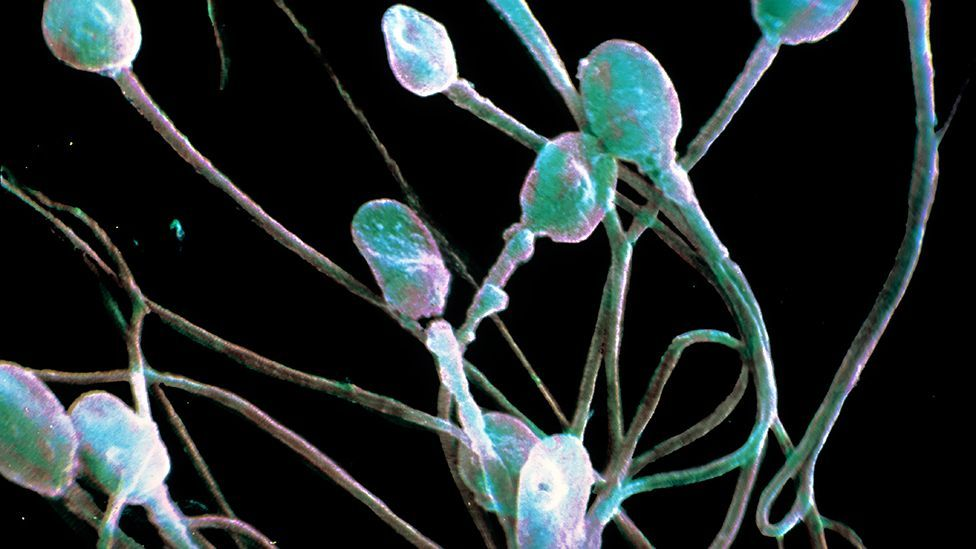 Sperm is usually necessary for reproduction - but it can come from other sources than men (SPL)