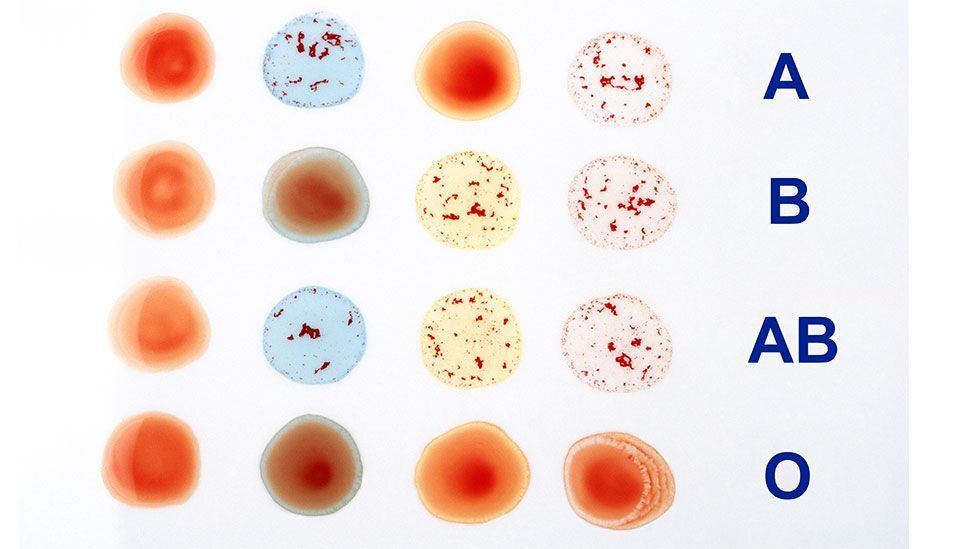 Different blood types arise as a result of different molecules on the surface of red blood cells (Science Photo Library)