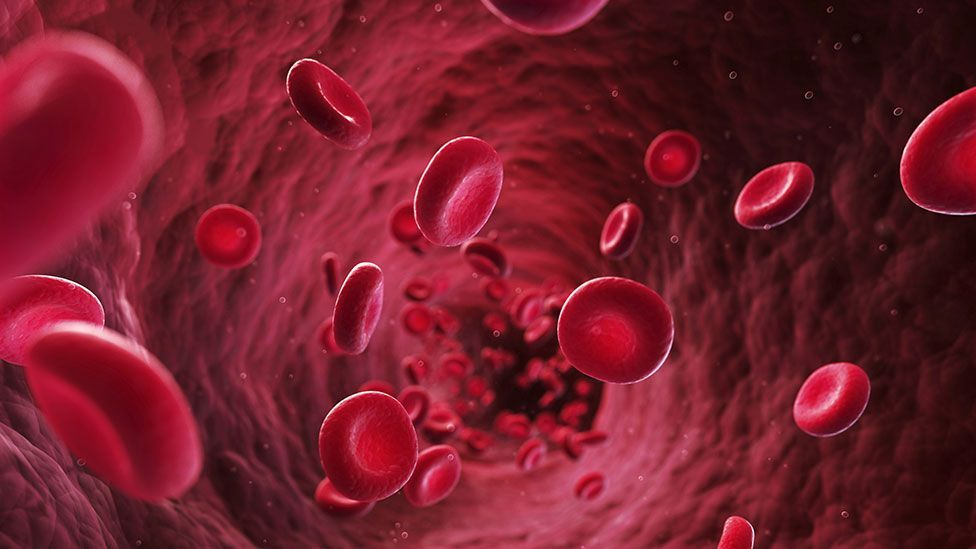 Blood pressure-related injuries to coronary artery walls can contribute to heart disease (Thinkstock)