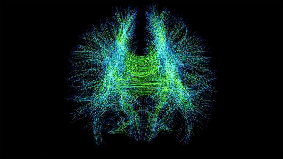 Brain fibres, as seen in this MRI scan, could leave physical clues of depression (Science Photo Library)