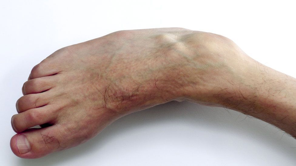 Charcot-Marie-Tooth disease weakens the muscles, as seen in the foot of this male patient (SPL)