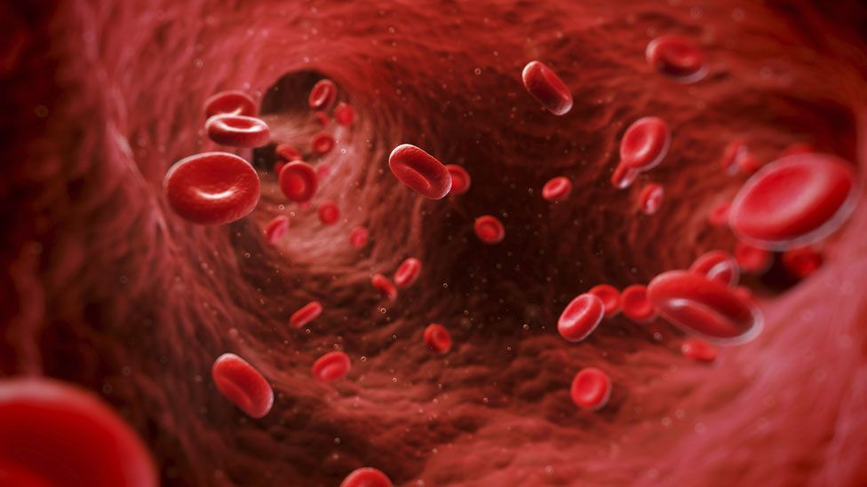 Goodsell's rare heart condition affected her bloodflow (Thinkstock)
