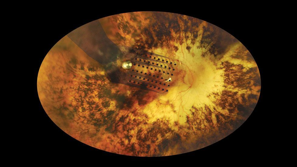 An implanted electrode on the retina bypasses the failed parts of the eye (Second Site)