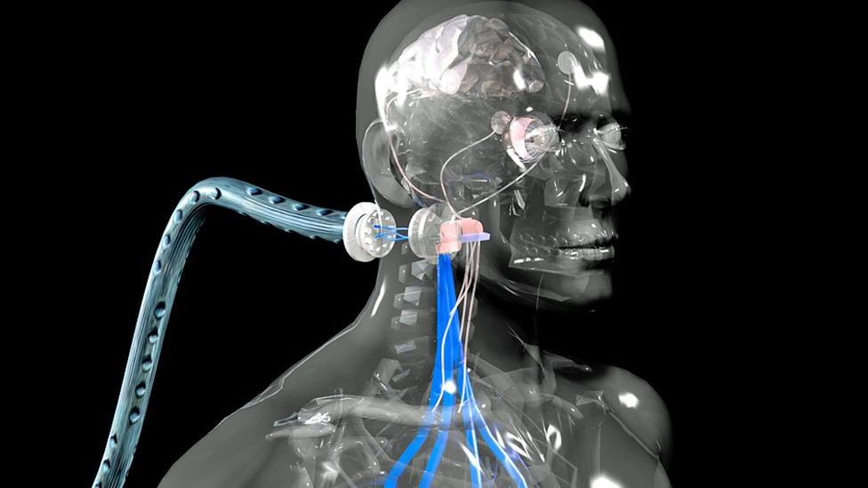 Read: How I became a cyborg (Image credit: SPL)