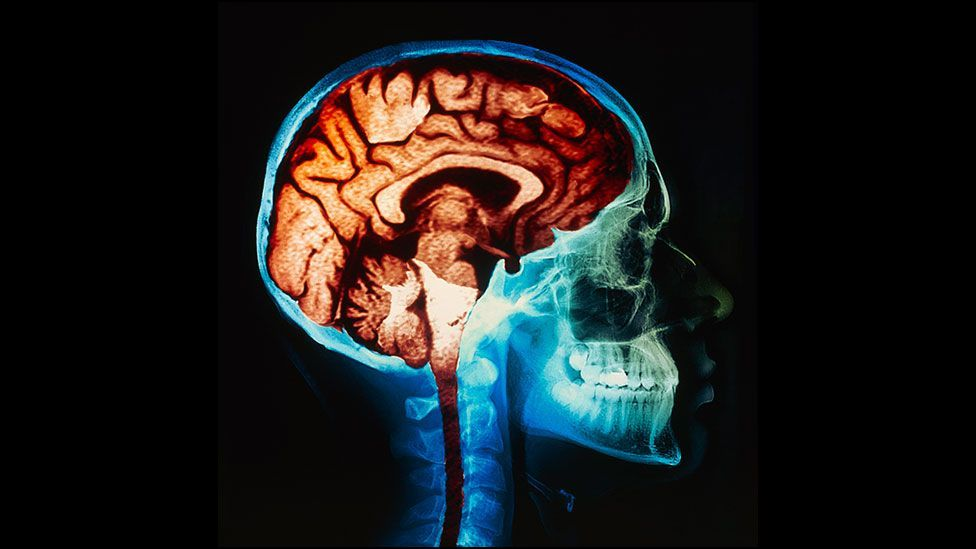 The brains of ultra-athletes shrink significantly during events (SPL)
