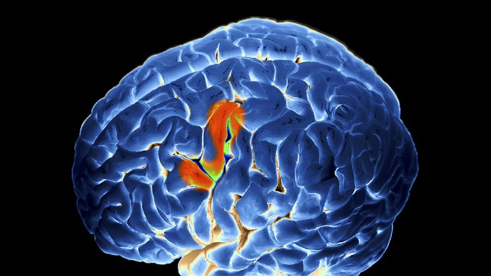 Several areas of the brain are involved when the interpreters are working in real time (SPL)