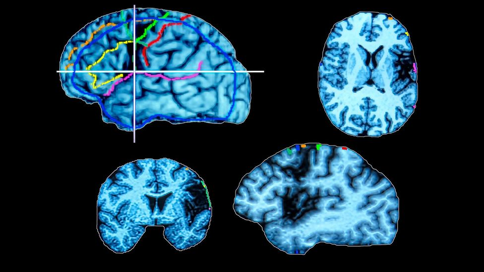 Computed tomography (CT) scans show brain activity in the cortical and subcortical areas, activated during the recognition of faces and objects (Credit: Science Photo Library)