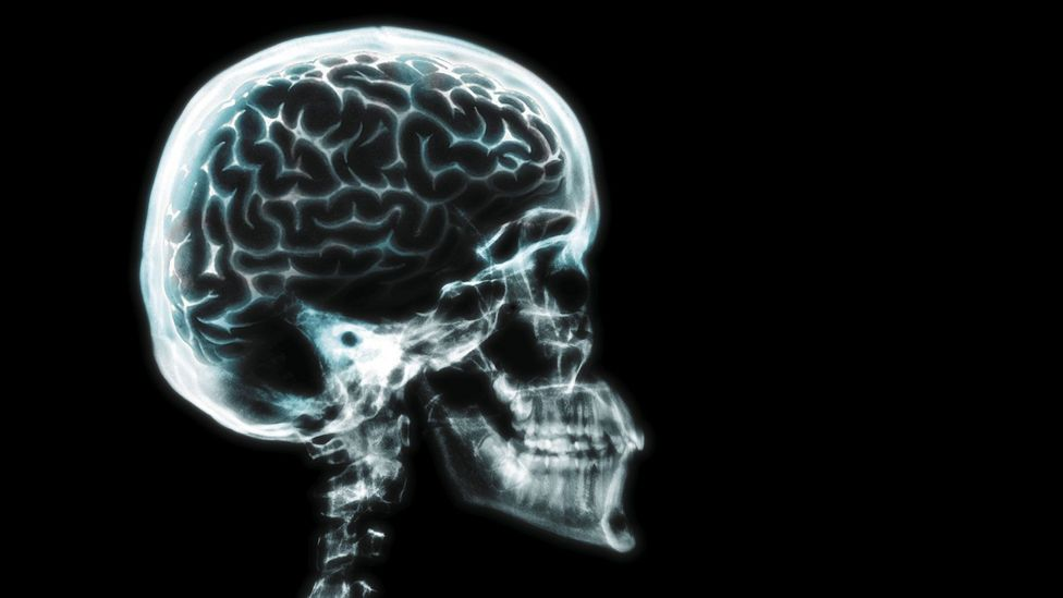 The human brain is advantageously big (Credit: Thinkstock)