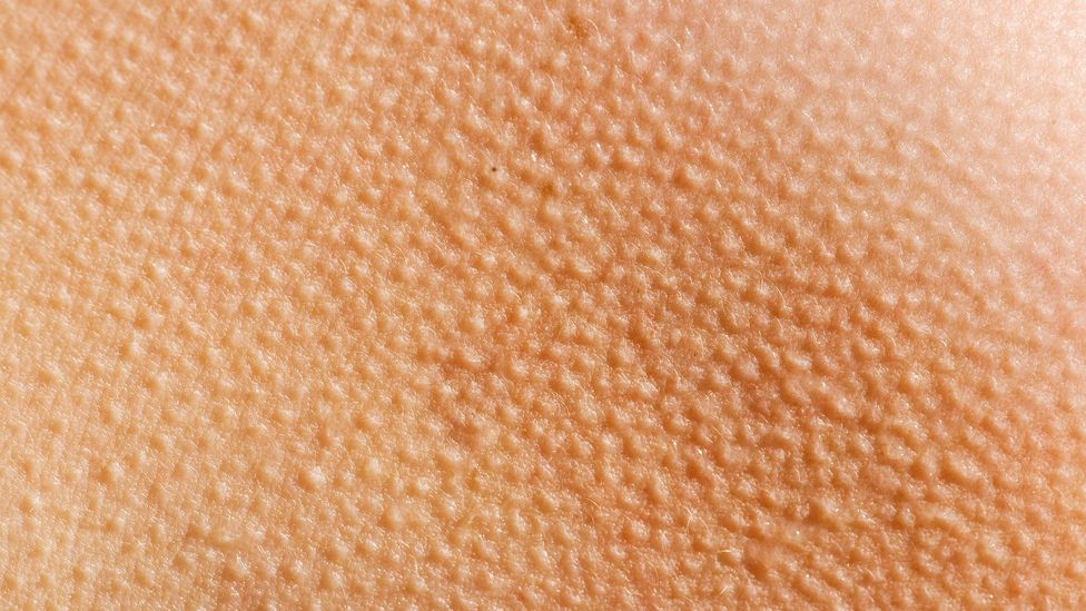 Goosebumps are common during musical frisson - but there are many other symptoms (Credit: Thinkstock)