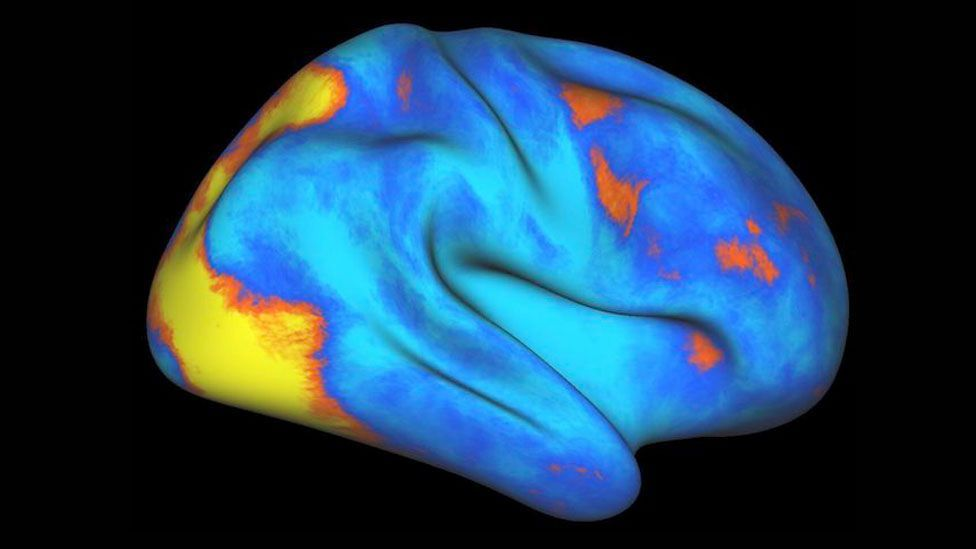 Increases (orange-­yellow) and decreases (blue) of neural activity in the human brain (Credit: Gaurav Patel/Columbia University Medical Center)