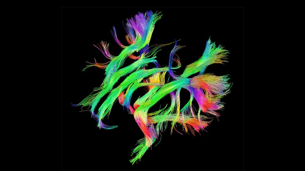 The Human Connectome Project that shows the white-matter networks in our brains has been described as 'the final frontier' in cartography (Credit: www.humanconnectomeproject.org)