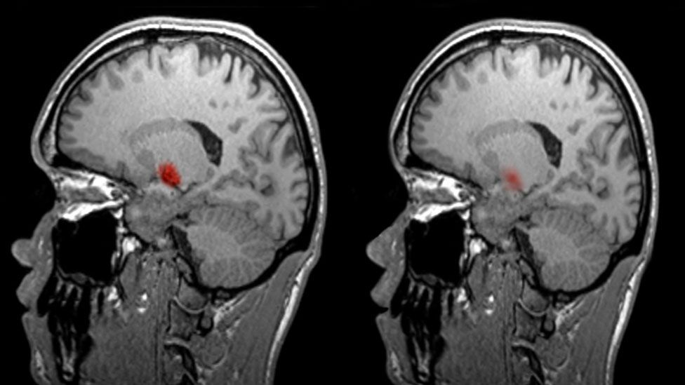 Researchers ask people to perform specific tasks inside fMRI scanners, then monitor the activity to infer what the brain is doing (Credit: SPL)