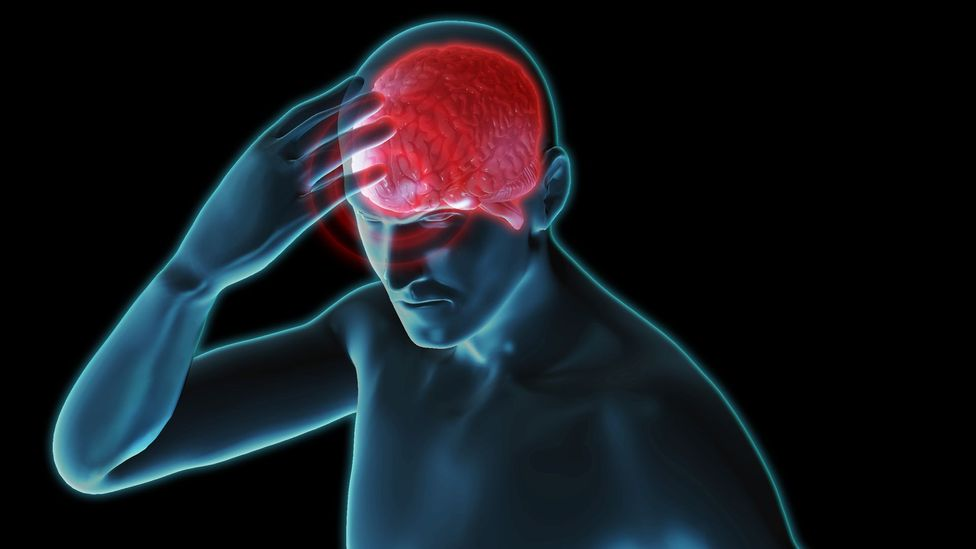 Migraines may become less severe as we age, research suggests (Credit: Science Photo Library)