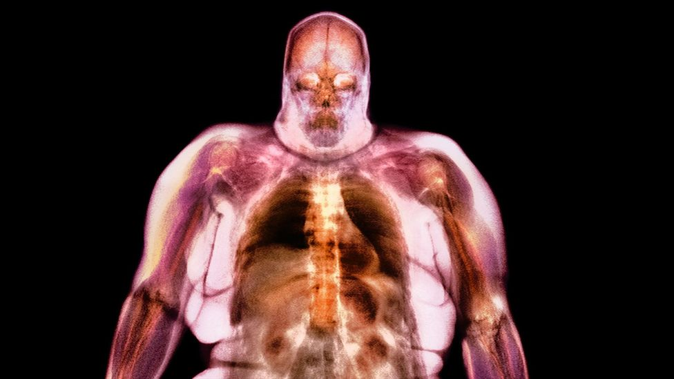 Tiny particles irritating the lungs may set off a cascade of reactions throughout the body, disrupting the hormones that control appetite (Credit: Science Photo Library)