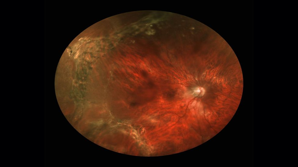 Sudden onset of eye floaters can mean serious problems, such as the separation of the vitreous from the retina (Credit: Science Photo Library)