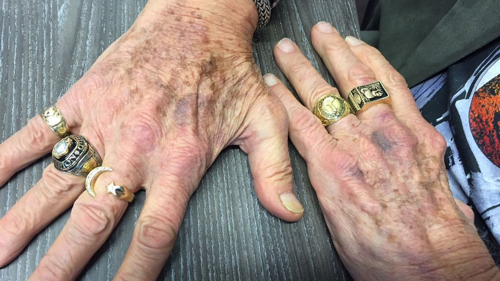 Buzz Aldrin's rings tell much about his life, both before and after the Moon landings  (Credit: Sue Nelson)