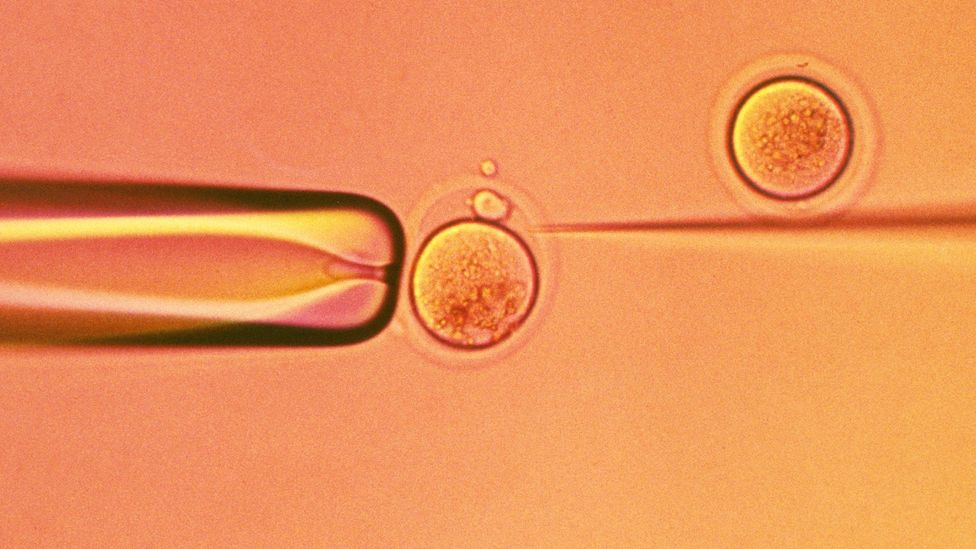 In Israel, state health insurance can fund IVF cycles using sperm extracted without specific written consent (Credit: SPL)