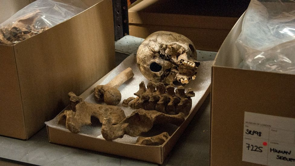 Unpacked from its box, a skeleton waits to be x-rayed (Credit: Amanda Ruggeri)