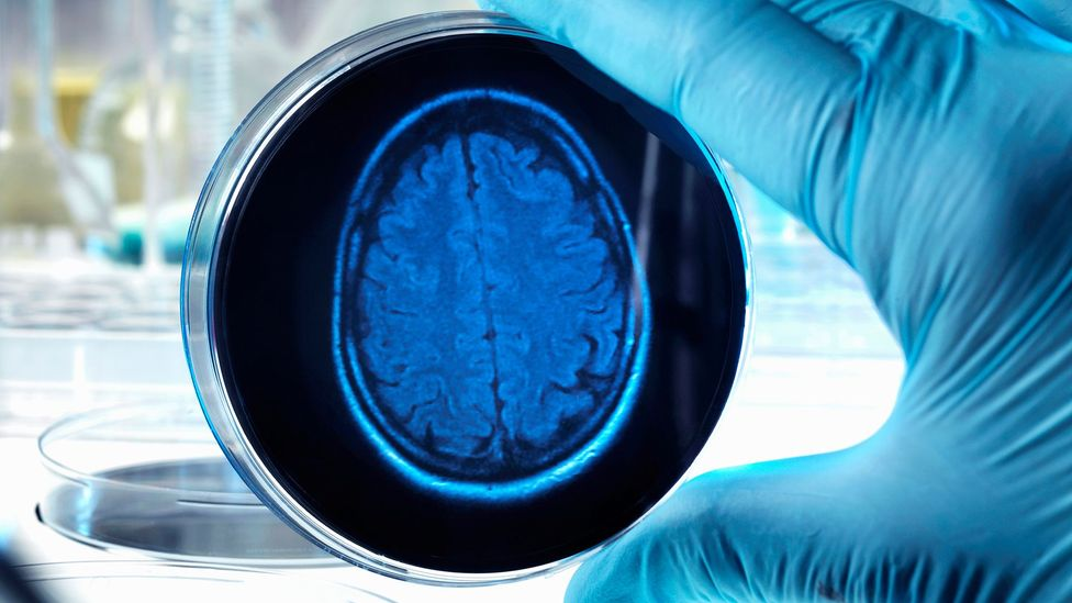 """The tiny brains cannot """"think"""" because they do not have a body with which to help process information (Credit: iStock)"""