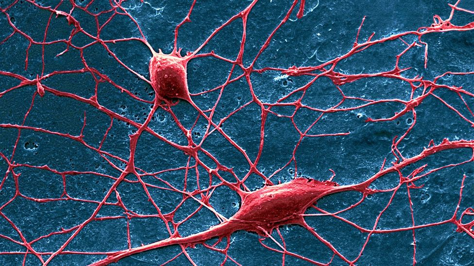 Pain is transmitted by nerve cells from the limbs to the spinal cord and from there to the brain (Credit: David McCarthy/Science Photo Library)