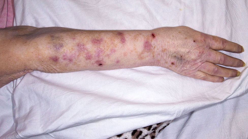 The burning pain that occurs with an outbreak of shingles can be unbearable (Credit: Mid Essex Hospital Services NHS Trust/Science Photo Library)