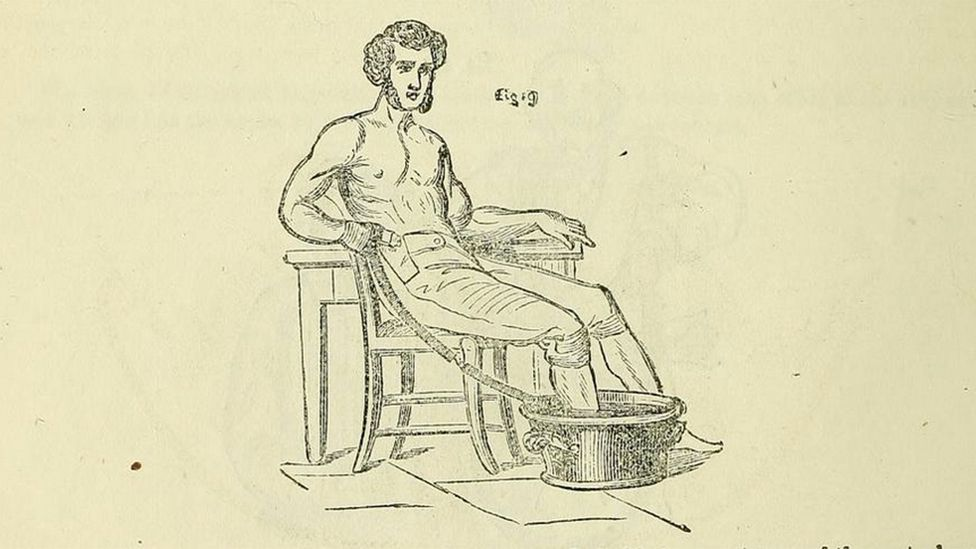 This diagram from Pulvermacher's manual shows the way that Charles Dickens may have treated his leg pain (Credit: Creative Commons)
