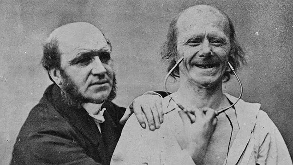 True 'felt' smiles were first discovered by repeatedly electrocuting a middle-aged man (Credit: Wellcome Library, London)