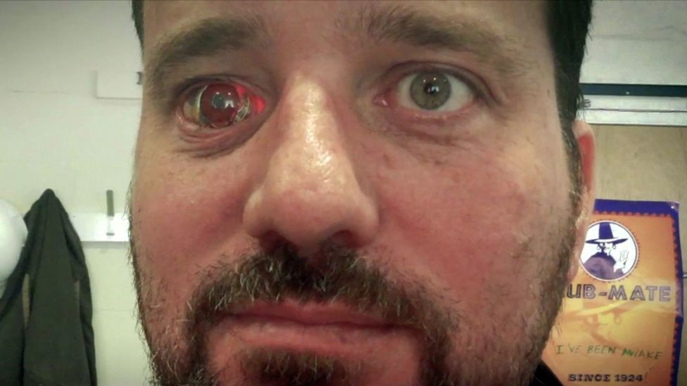 Rob Spence, a film-maker with a bionic eye