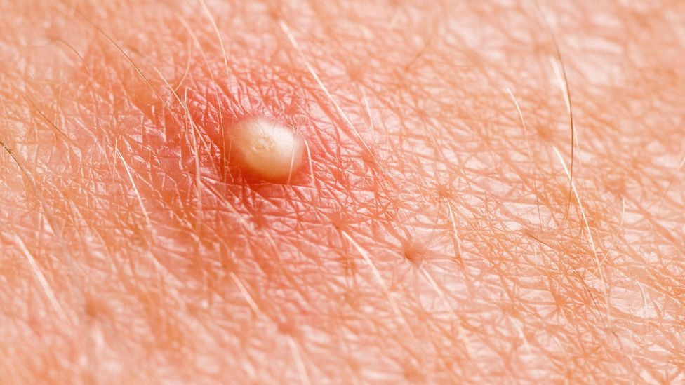 Close-up of a pimple (Credit: iStock)