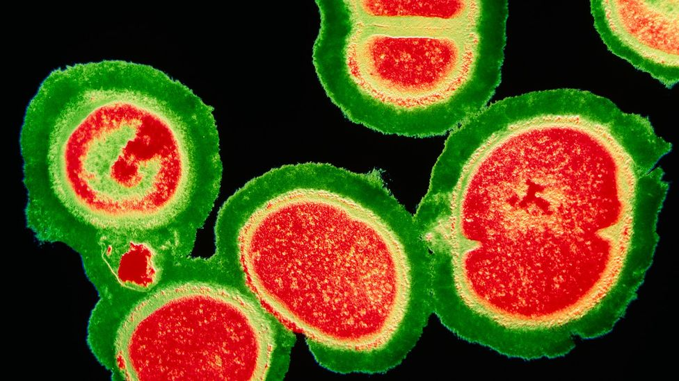 MRSA is a bacterium that can lead to infections and is resistant to most antibiotic drug agents; yet some strains yield to the drug vancomycin (Credit: Science Photo Library)
