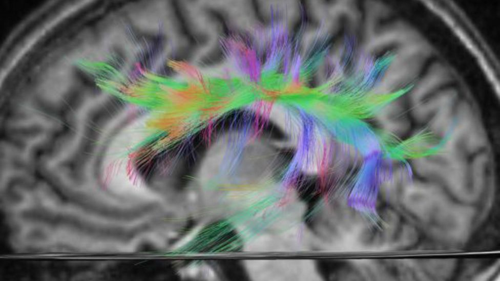 An MRI scan highlighting the language tract in the brain (Credit: Alamy)