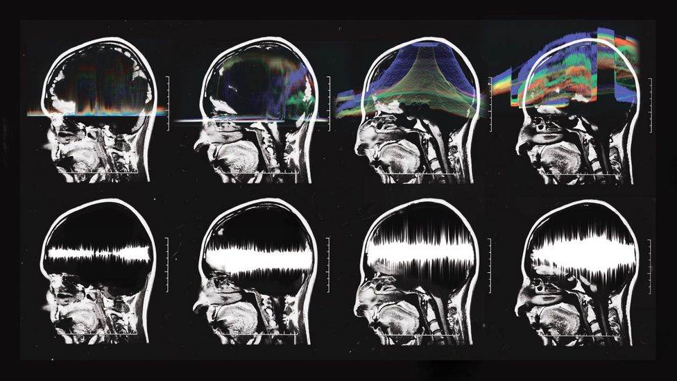 Music activates the whole brain (Credit: Silvia Grav)
