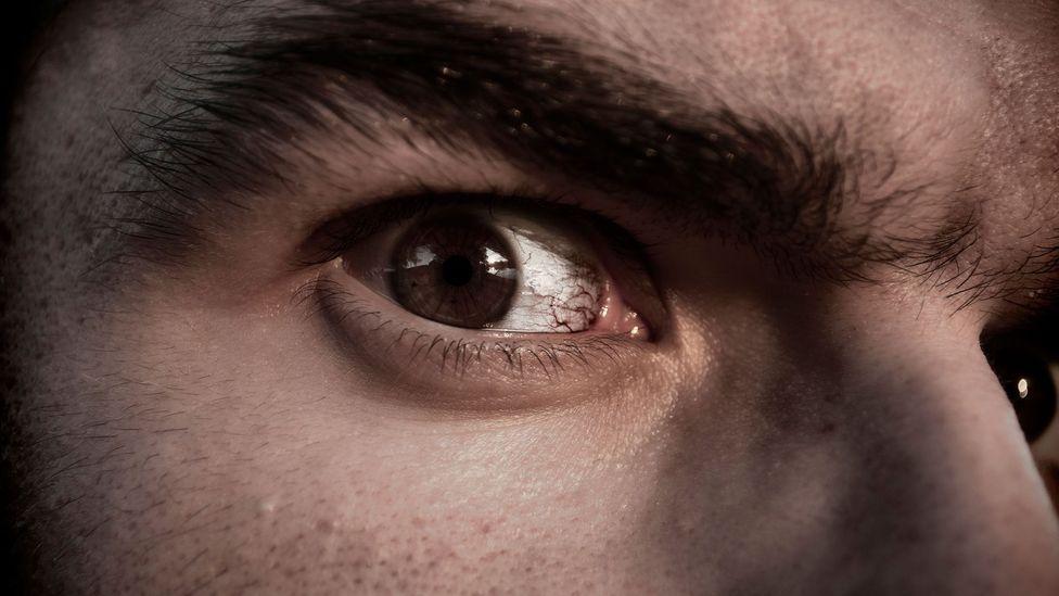 Red eyes (Credit: Alamy)