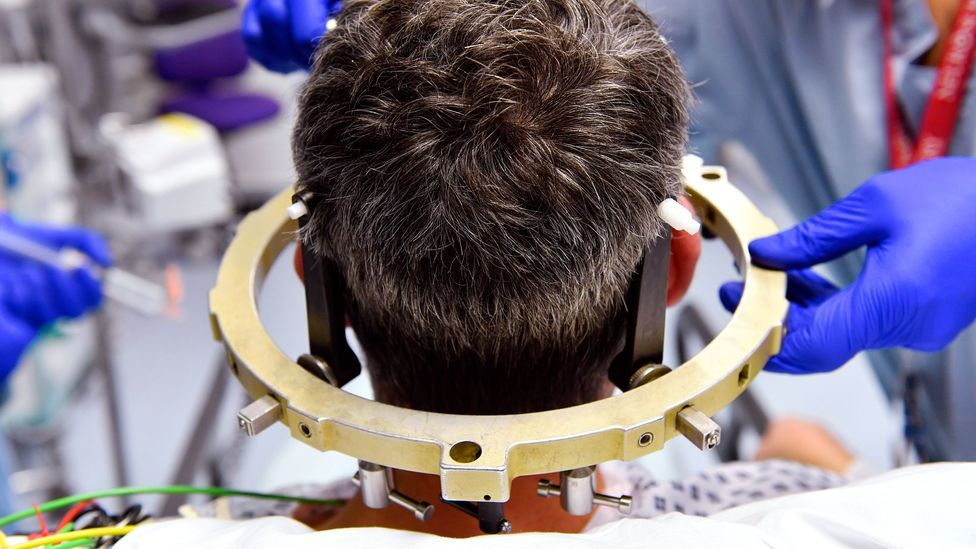 Deep brain stimulation helps individuals with tremor disorders (Credit: Science Photo Library)