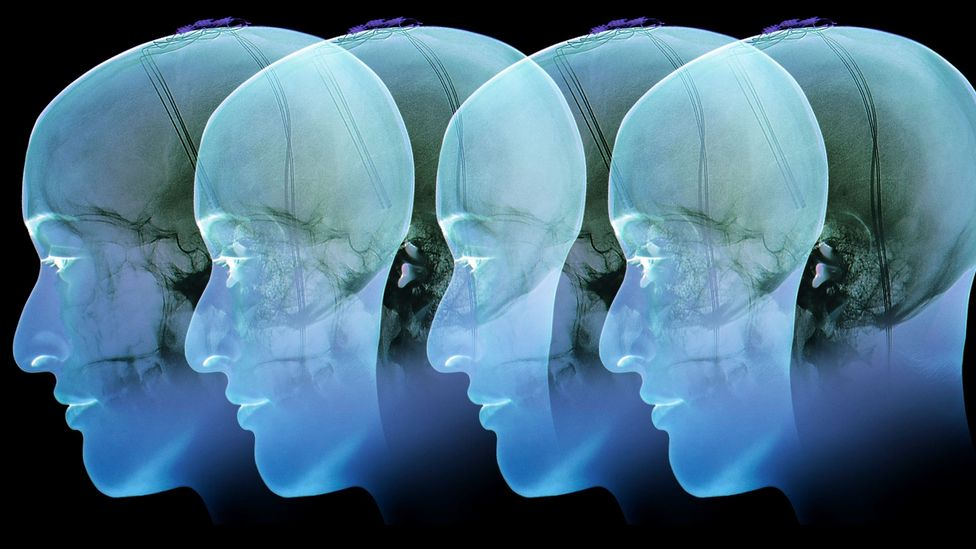 The brain's reward centre is over-active in individuals with addiction disorders (Credit: Science Photo Library)