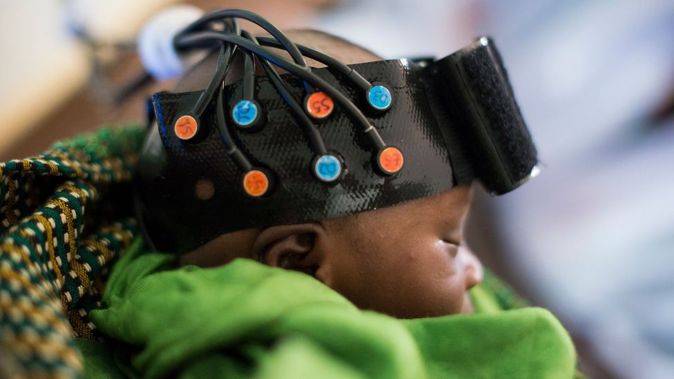 Babylab used infrared spectroscopy to study the effects of malnutrition on babies in the Gambia (Credit: The BRIGHT Project, funded by the Bill and Melinda Gates Foundation)