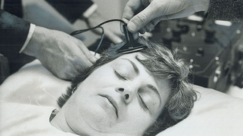 Doctors in a Toronto hospital place the electrodes in a 1976 simulation of an ECT session (Credit: Getty Images)
