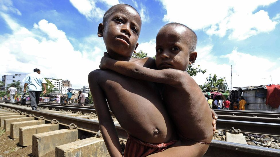 Malnourishment as a child can lead to stunted growth and other health problems that linger throughout life (Credit: Getty Images)