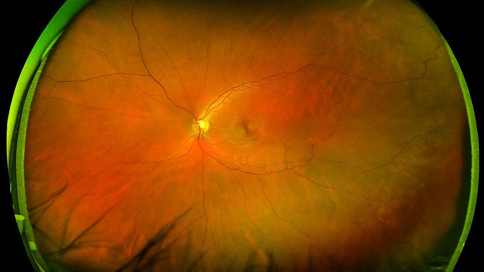 The patterns of blood vessels on the retina at the back of the eye can help to reveal whether you are at risk of a heart attack (Credit: Getty Images)